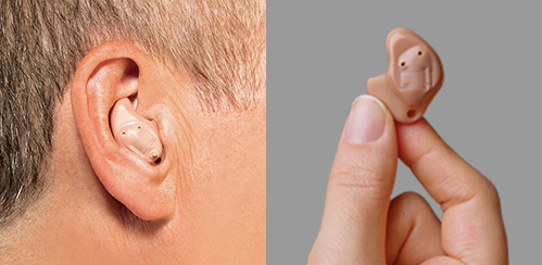 In the Ear (ITE)